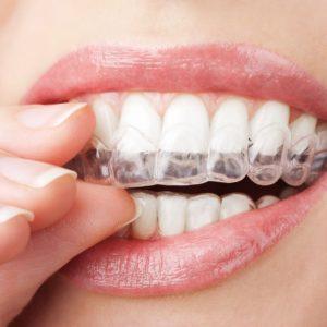 Domácí bělení zubů